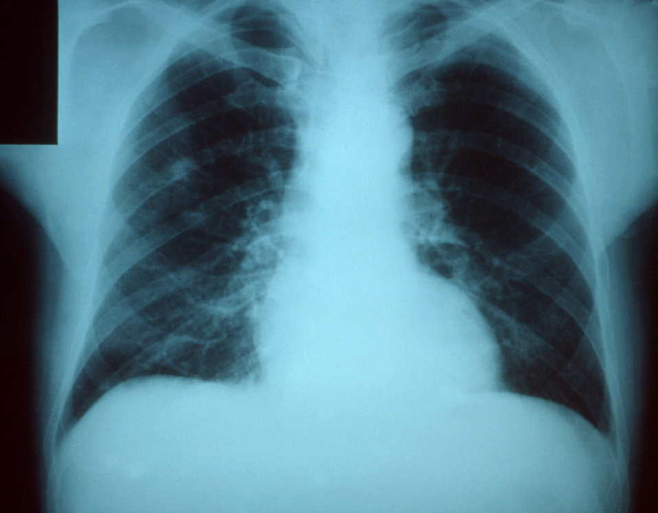 This anteroposterior chest x-ray revealed right upper lobe pneumonia the etiology of which was unknown.