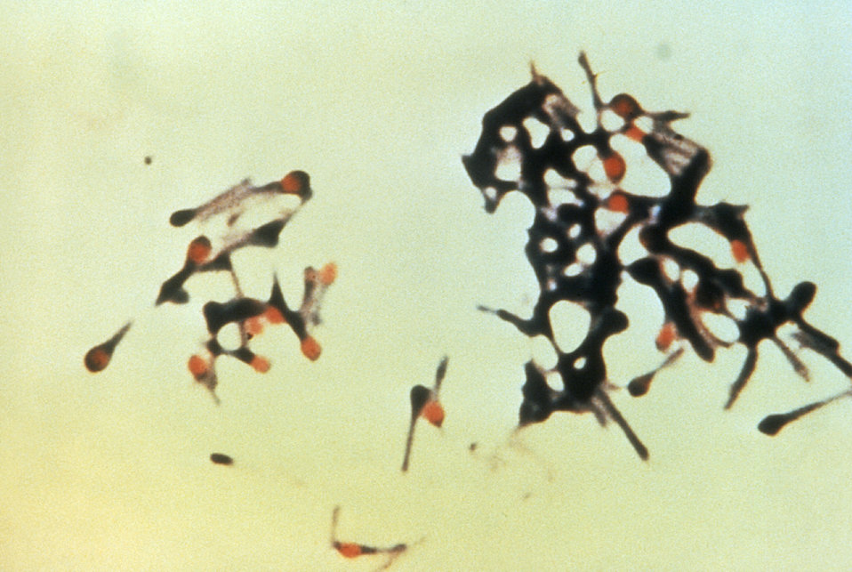 This micrograph depicts a group of Clostridium tetani bacteria, responsible for causing tetanus in humans.
