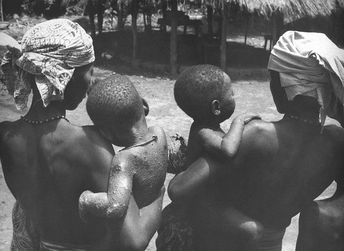 This image was captured during Nigeria's Smallpox Eradication Program activities, 1968.