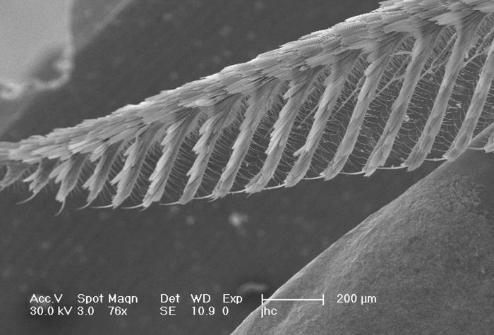 Under a relatively low magnification of 76X, this scanning electron micrograph (SEM) revealed some of the ultrastructural morphology located