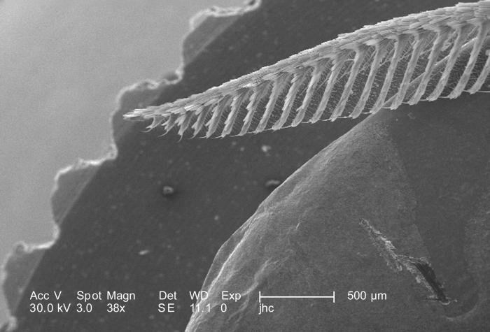 Under a low magnification of 38X, this scanning electron micrograph (SEM) revealed some of the ultrastructural morphology located on the hea