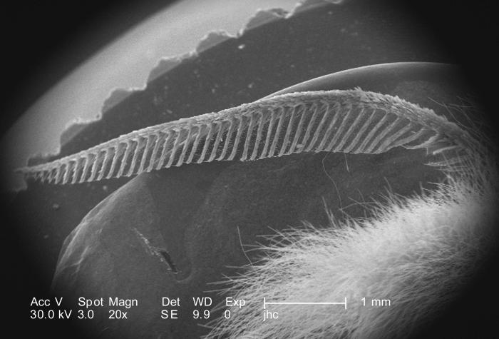 Under a low magnification of 20X, this scanning electron micrograph (SEM) revealed some of the ultrastructural morphology located on the hea