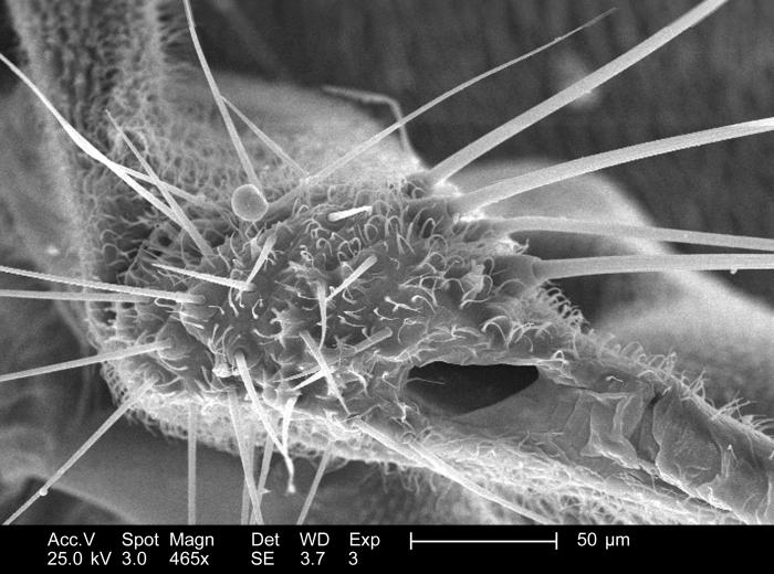 Magnified 465x, this scanning electron micrograph (SEM) depicted some of the morphologic details found associated with the wing attachment o