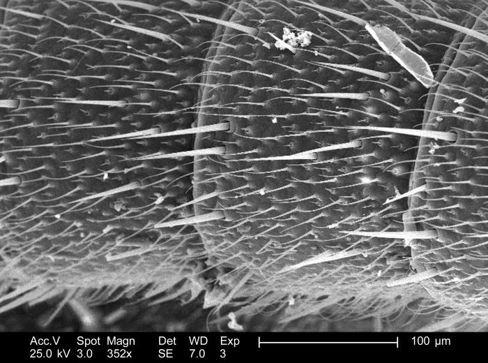 This relatively low-powered scanning electron micrograph (SEM), magnified 352x, revealed the structural details displayed along the exterior