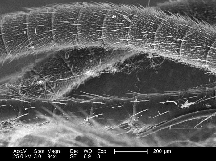 This relatively low-powered scanning electron micrograph (SEM), magnified 94x, revealed the structural details displayed along the exterior
