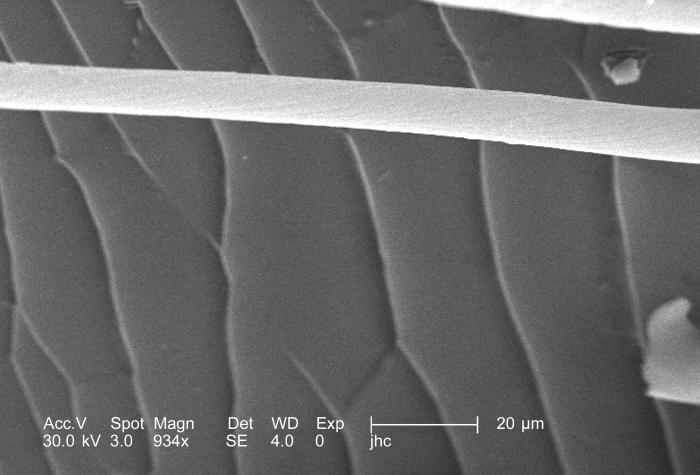 Under the moderately high magnification of 934x, this scanning electron micrograph (SEM) revealed some of the morphologic features encounter