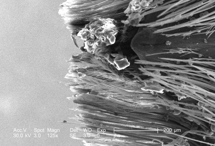 Under the moderate magnification of 125x, this scanning electron micrograph (SEM) revealed some of the morphologic features encountered at t