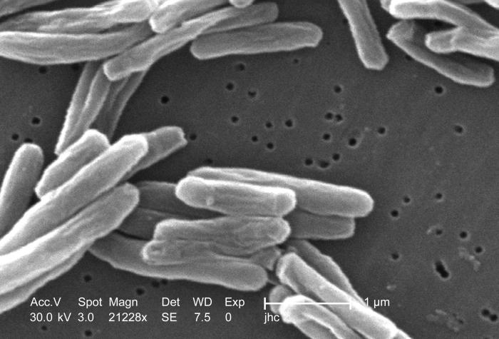 Under a high magnification of 21228x, this scanning electron micrograph (SEM) depicted some of the ultrastructural details seen in the cell