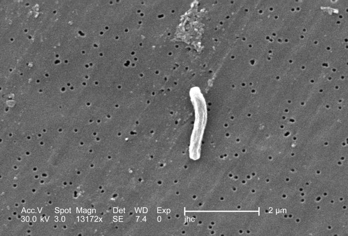 At a magnification of 13172x, this scanning electron micrograph (SEM) depicted a single Gram-positive Mycobacterium tuberculosis bacterium.