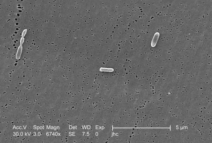 Magnified 6,740x, this scanning electron micrograph (SEM) depicted three Ralstonia mannitolilytica bacteria, which were harvested from a pur