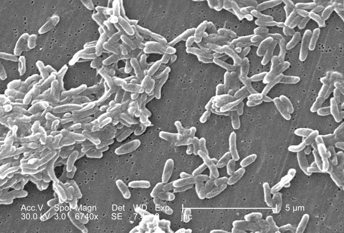 Magnified 6,740x, this scanning electron micrograph (SEM) depicted a grouping of Ralstonia mannitolilytica bacteria, which was harvested fro