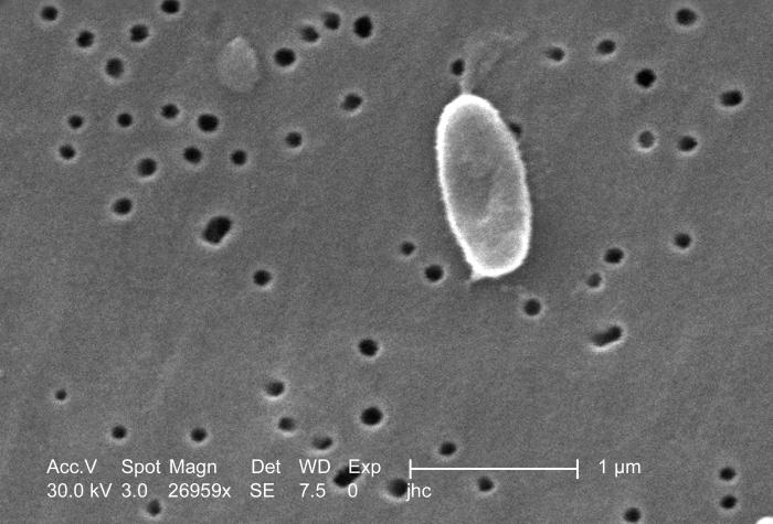 Magnified 26,959x, this scanning electron micrograph (SEM) depicted a highly enlarged view of a Ralstonia mannitolilytica bacterium, which w