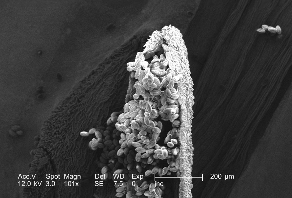 Magnified 101x, this scanning electron micrograph (SEM) revealed some of the morphologic ultrastructure found amongst a collection of pollen