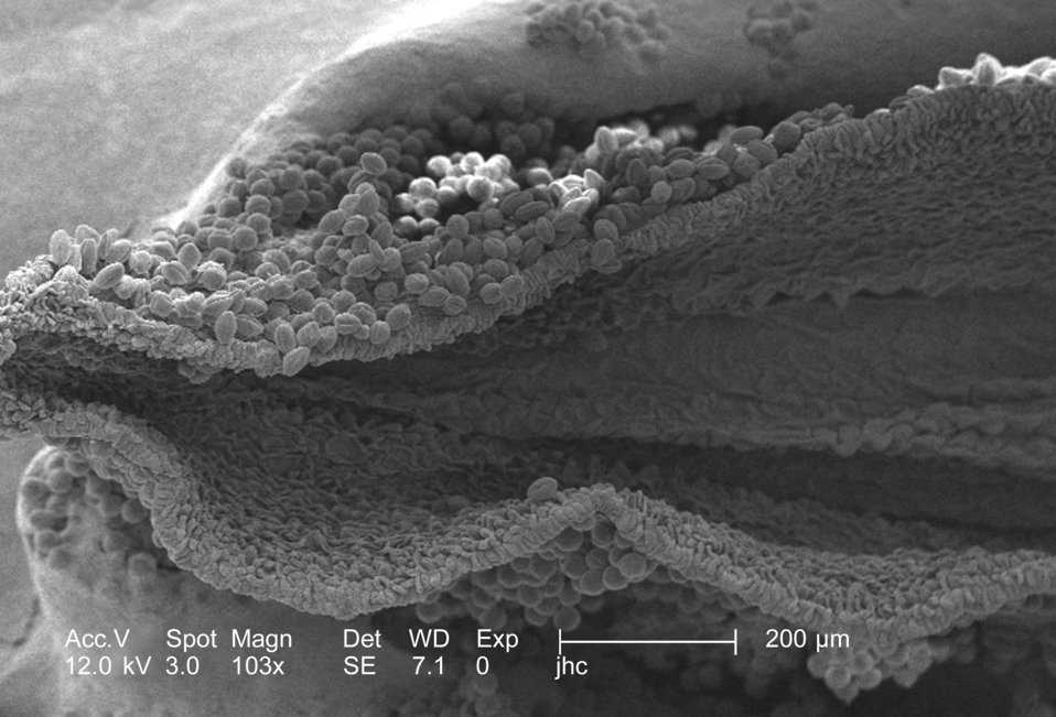 Under a low magnification of 103x, this scanning electron micrograph (SEM) revealed some of the morphologic ultrastructure found amongst a c