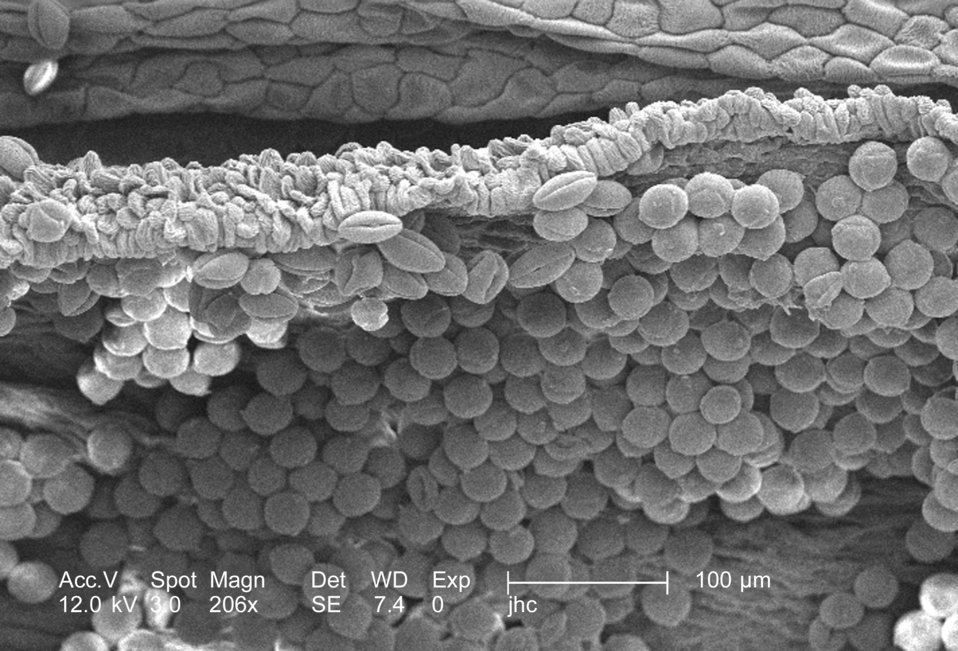 Under a magnification of 206x, this scanning electron micrograph (SEM) revealed some of the morphologic ultrastructure found amongst a colle
