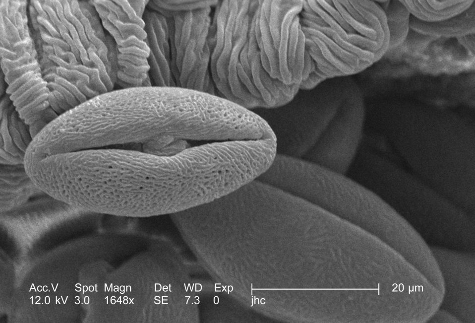 Under a high magnification of 1648x, this scanning electron micrograph (SEM) revealed some of the morphologic ultrastructure found amongst a