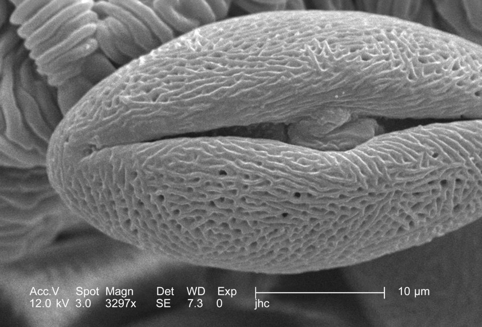 Under a very high magnification of 3297x, this scanning electron micrograph (SEM) revealed some of the morphologic ultrastructure displayed