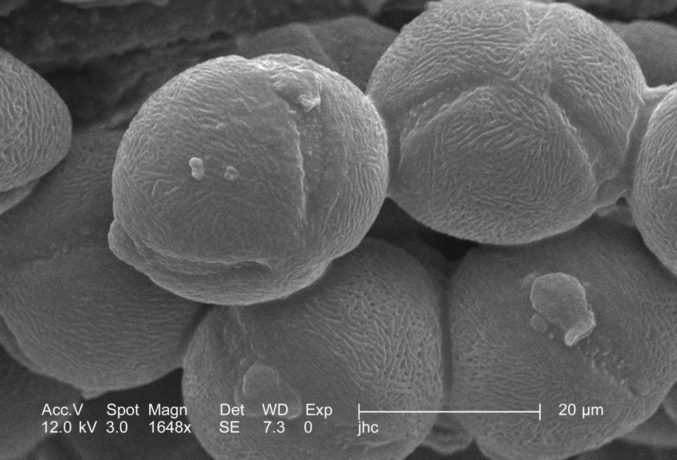 Under a high magnification of 1648x, this scanning electron micrograph (SEM) revealed some of the morphologic ultrastructure displayed by a