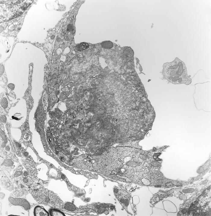 This 1978 transmission electron micrograph (TEM) depicted a brain capillary of mouse that had been experimentally infected intravenously wit