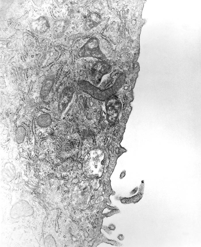 This 1976 transmission electron micrograph (TEM) depicted a hypertrophic peritoneal mesothelial cell from mouse that had been experimentally