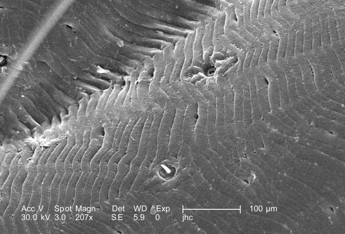Under a magnification of 207X, this scanning electron micrographic (SEM) image depicted a dorsal view of an unidentified engorged female tic