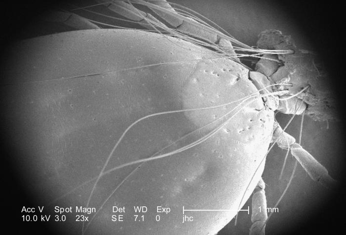 Under a low magnification of 23X, this scanning electron micrographic (SEM) image depicted a dorsal view of an unidentified engorged female