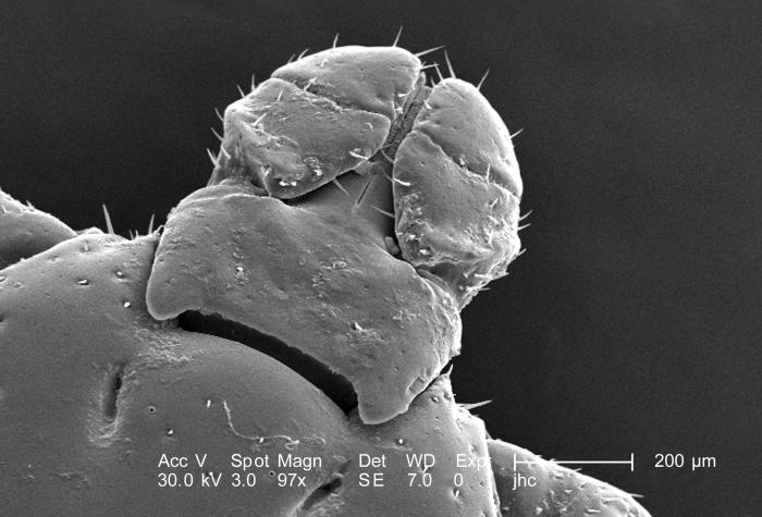Under a magnification of 97X, this scanning electron micrograph (SEM) depicted a dorsal view of an unidentified male Dermacentor  sp. tick f