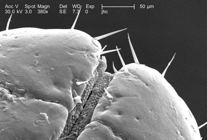 Under a magnification of 380X, approximately 4 times greater than PHIL 9962, this scanning electron micrograph (SEM) depicted a dorsal view