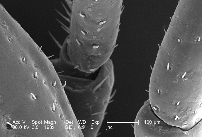 Under a relatively low magnification of 193X, this scanning electron micrograph (SEM) provided a closer view of this male Dermacentor  sp. t