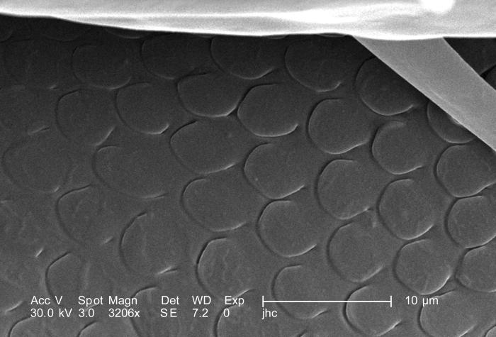 Under a magnification of 3206X, four times greater than PHIL 9965, this scanning electron micrograph (SEM) depicted a dorsal view of an unid