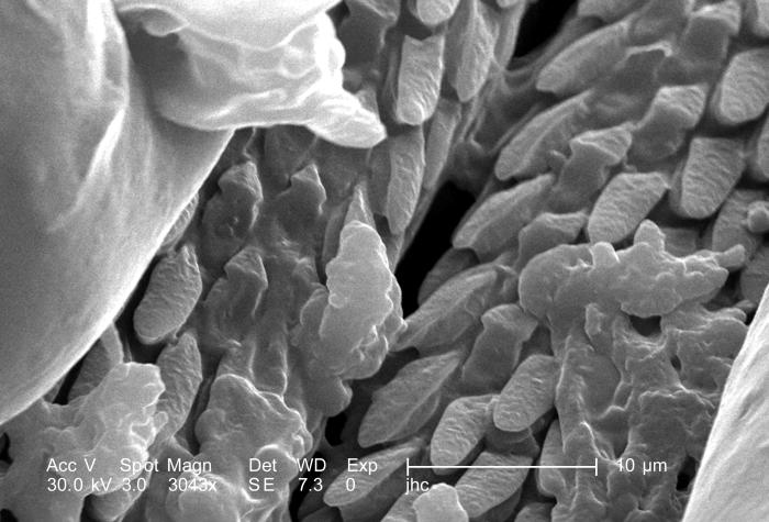 Under a magnification of 3043X, approximately 8 times greater than PHIL 9963, this scanning electron micrograph (SEM) depicted a dorsal view