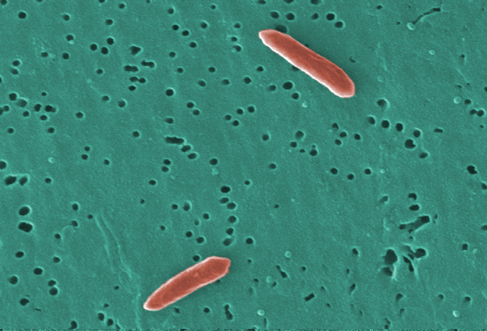 This digitally-colorized scanning electron micrograph (SEM) depicted two Gram-negative Sebaldella termitidis bacteria.