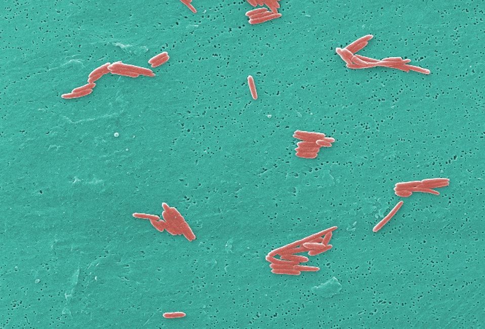 This digitally-colorized scanning electron micrograph (SEM) depicted numbers of Gram-negative Sebaldella termitidis bacteria.
