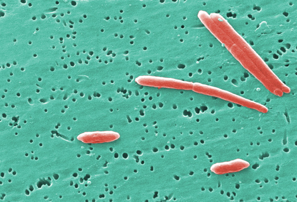 This digitally-colorized scanning electron micrograph (SEM) depicted a small grouping of Gram-negative Sebaldella termitidis bacteria.