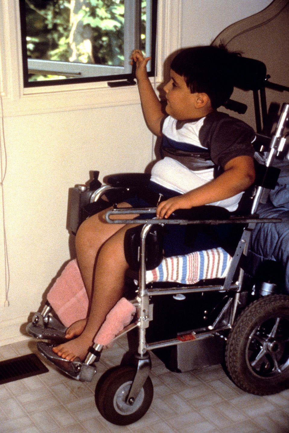 In this 1995 image, a young child who was seated in a wheelchair was operating a manual hand crank on a casement window.  Because the crank