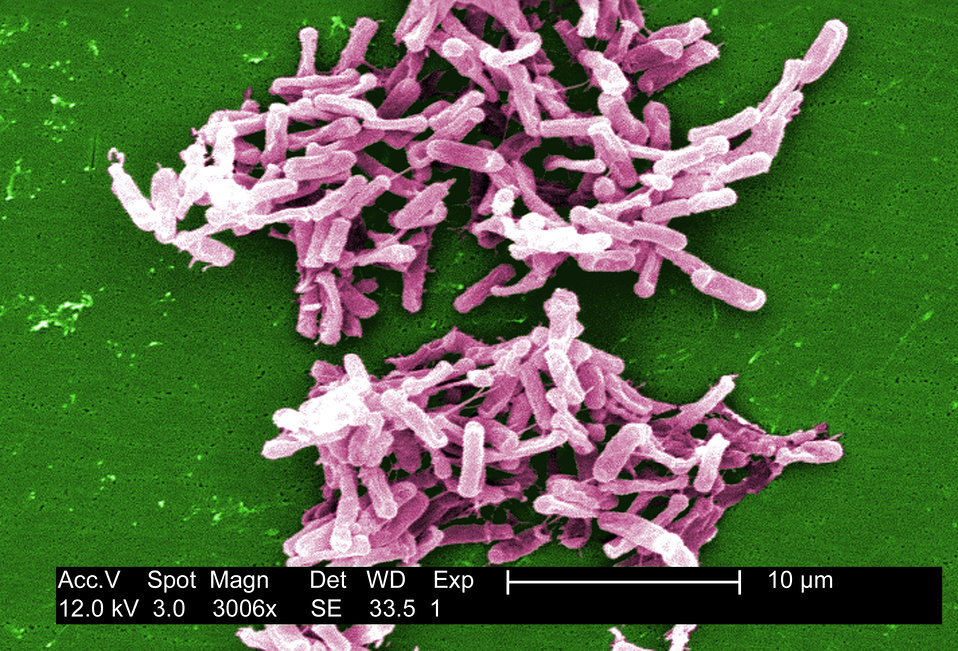 This micrograph depicts Gram-positive C. difficile bacteria from a stool sample culture obtained using a .1�m filter. See PHIL 6260 for a
