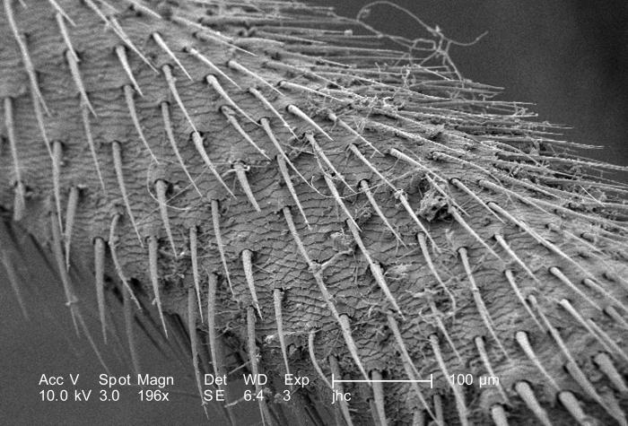 Under a magnification of 196X, approximately 1/4th the magnification of PHIL 9987, this scanning electron micrograph (SEM) revealed some of