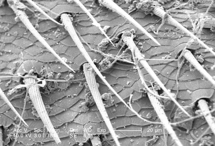 Under a high magnification of 781X, this scanning electron micrograph (SEM) revealed some of the exoskeletal ultrastructural morphology of a