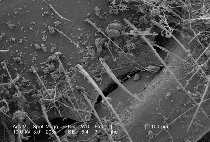 Revealed using a scanning electron microscope (SEM), at a magnification of 203X, were some of the exoskeletal ultrastructural characteristic