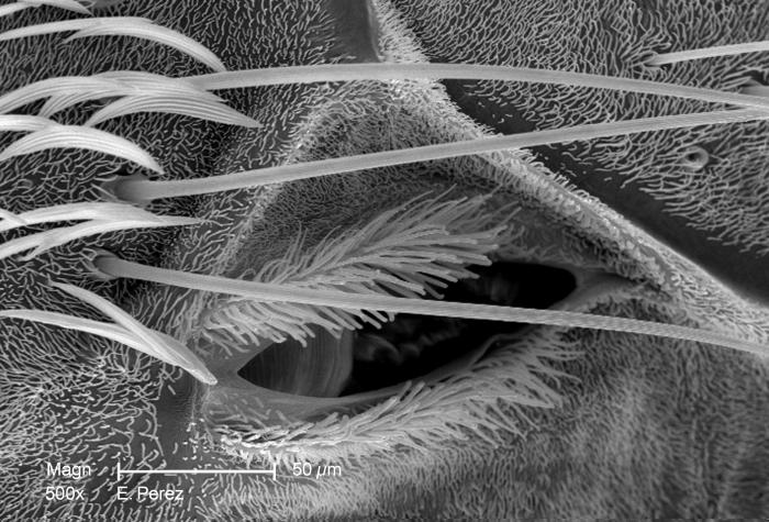 This is the third of four scanning electron micrographs (SEM) that are representative of successively greater magnifications of the thoracic