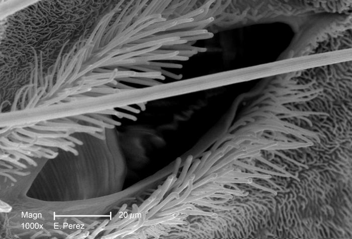 This is the forth of four scanning electron micrographs (SEM) that are representative of successively greater magnifications of the thoracic