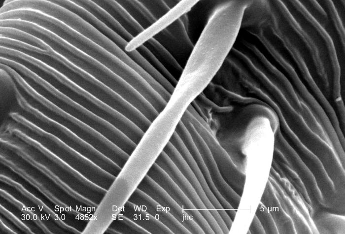 Under a magnification of 4852X, this scanning electron micrograph (SEM) revealed some of the morphologic features located upon the surface o