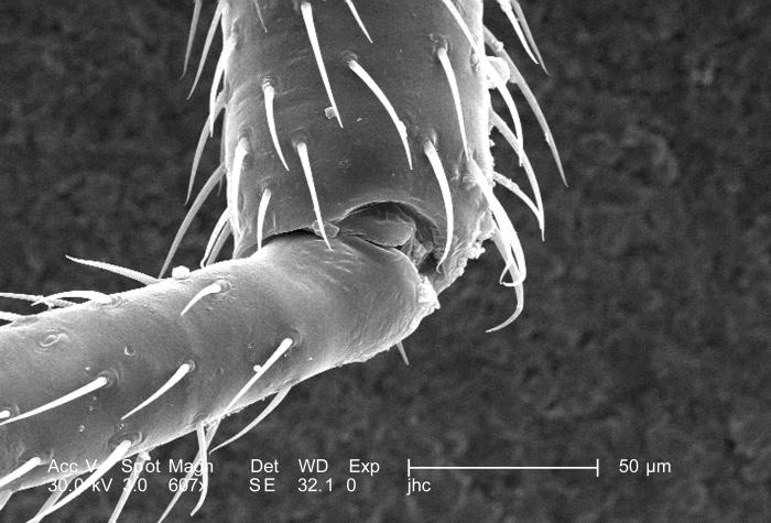 Under a moderately high magnification of 607X, this scanning electron micrograph (SEM) revealed some of the morphologic features located upo