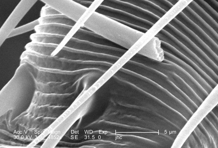 Under a high magnification of 4852X, this scanning electron micrograph (SEM) revealed some of the morphologic features located upon the surf