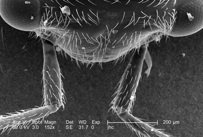 Under a low magnification of 153X, this scanning electron micrograph (SEM) depicted a number of morphologic structures found emanating from
