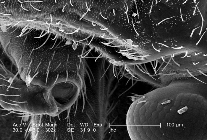 Magnified 302X, which is one fourth the magnification of PHIL 9913, this scanning electron micrograph (SEM) depicted some of the morphologic