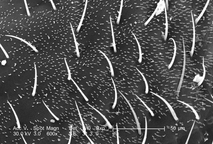 At a magnification of 600X, this scanning electron micrograph (SEM) depicted some of the morphologic details found on the surface of what wa