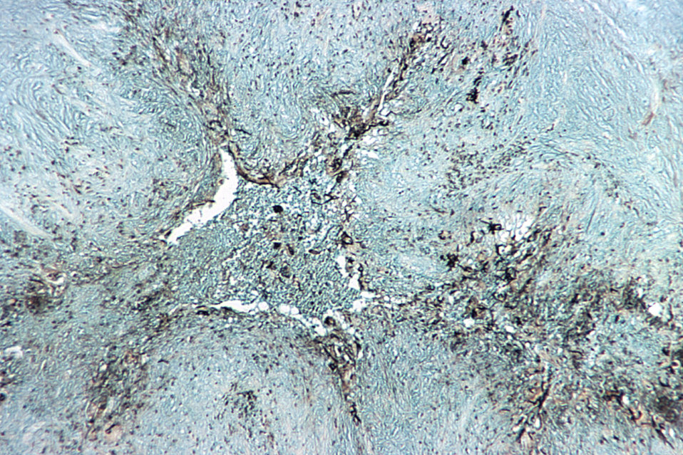 Prepared using a Gomori staining technique, and under a relatively low magnification of 50X, this photomicrograph reveals histopathologic ch