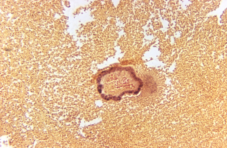 Prepared using the Brown and Brenn method of staining, and under a magnification of 125X, this photomicrograph reveals histopathologic chang