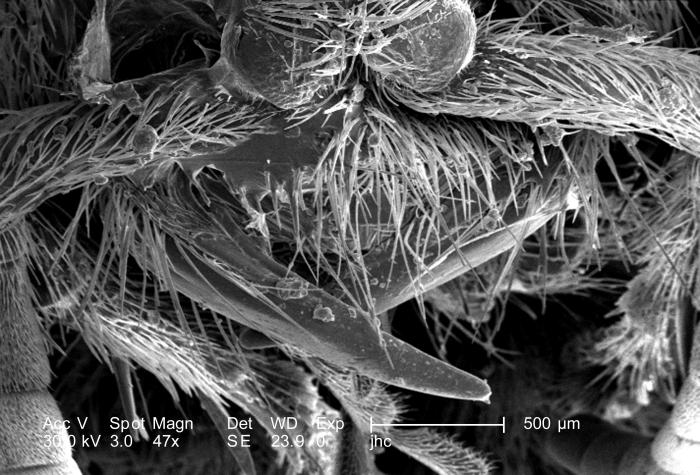 At 47X, this scanning electron micrograph (SEM) showed the head, and some of the thoracic region from an anterior view of a female velvet an